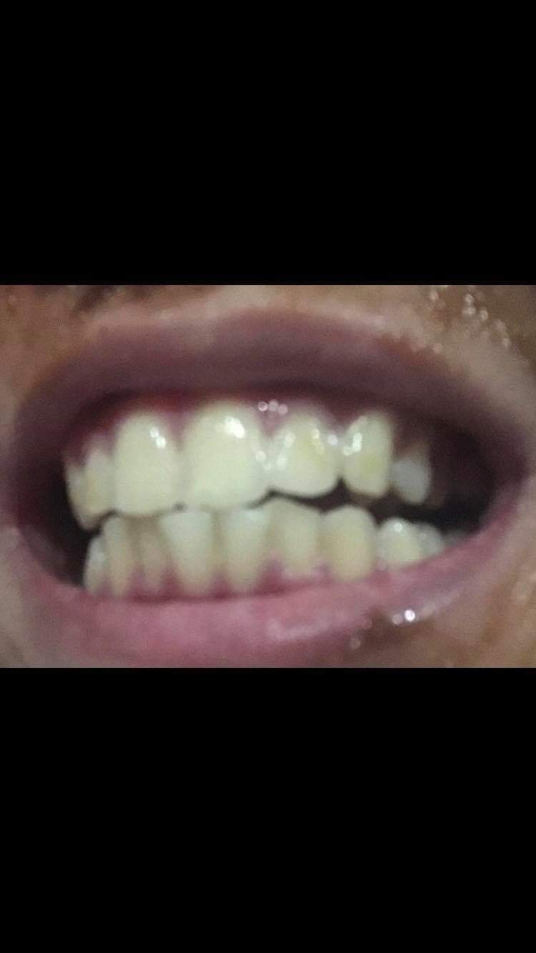 Teeth Whitening Subliminal Results | Subliminal Users Amino