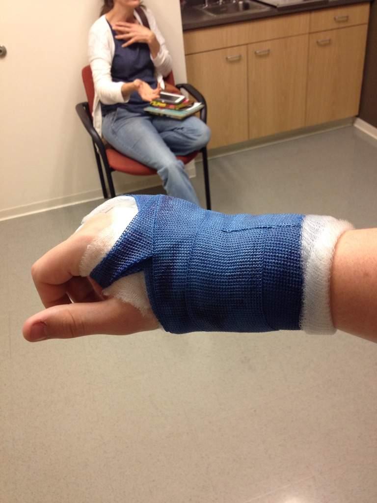 Broken Hand Boxer Fracture Anime Amino