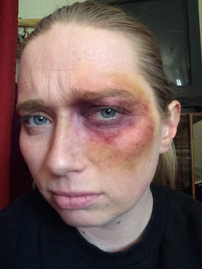 Bruising tutorial cosplay amino so when it comes to bruising you need to think how they got the bruise for this i figured a right hook to the eye the first thing that the fist would baditri Choice Image