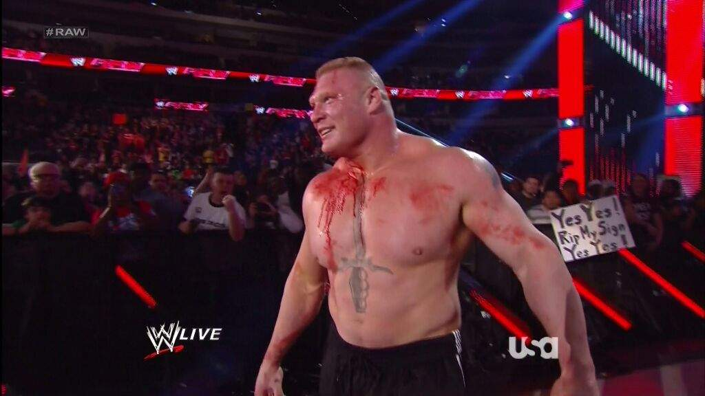 Does Brock Lesnar Likes To Bleed