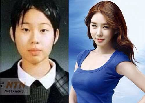plastic surgery before and after korean celebrities www