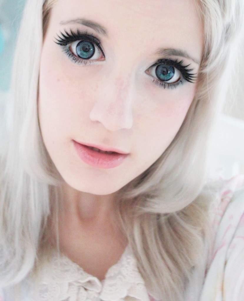 Problem: Nonwhites Girls use Plastic Surgery to Look White