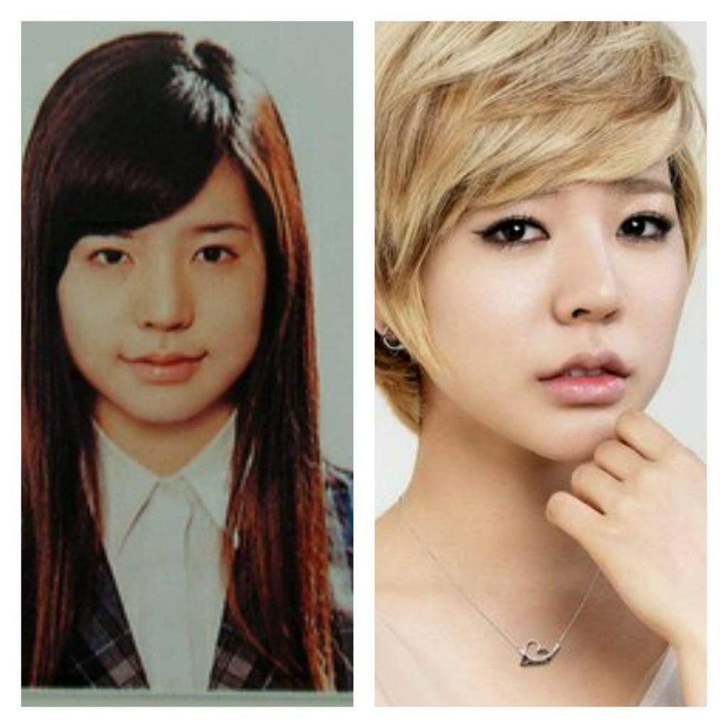 Kpop cirugias plasticas antes y despues de adelgazar