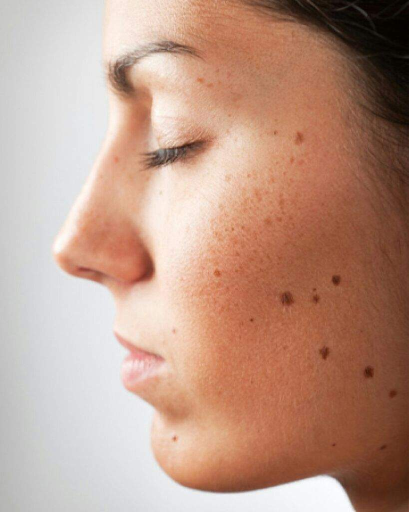 Moles on the face