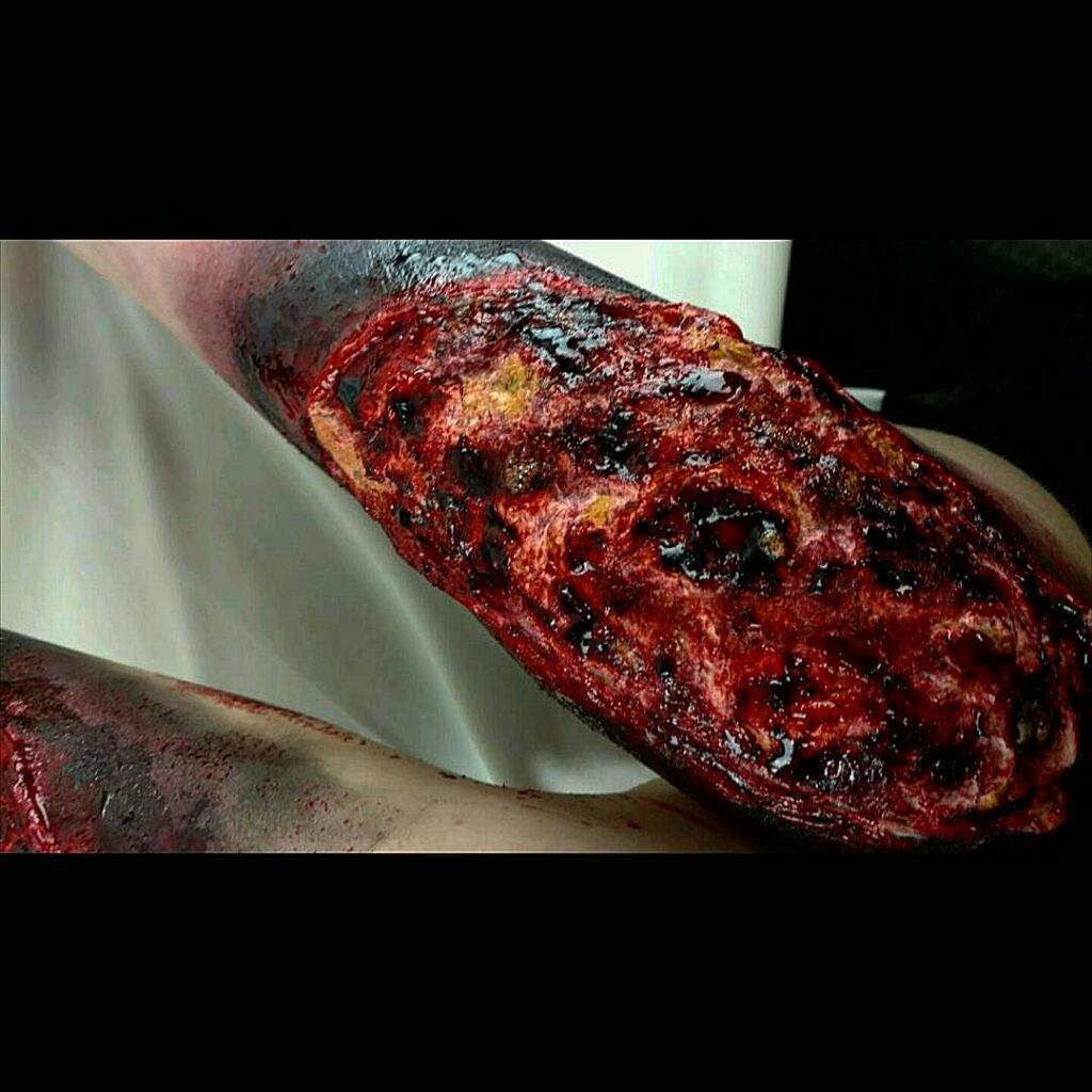 Flesh Eating Virus Thing Special Effects Makeup Amino