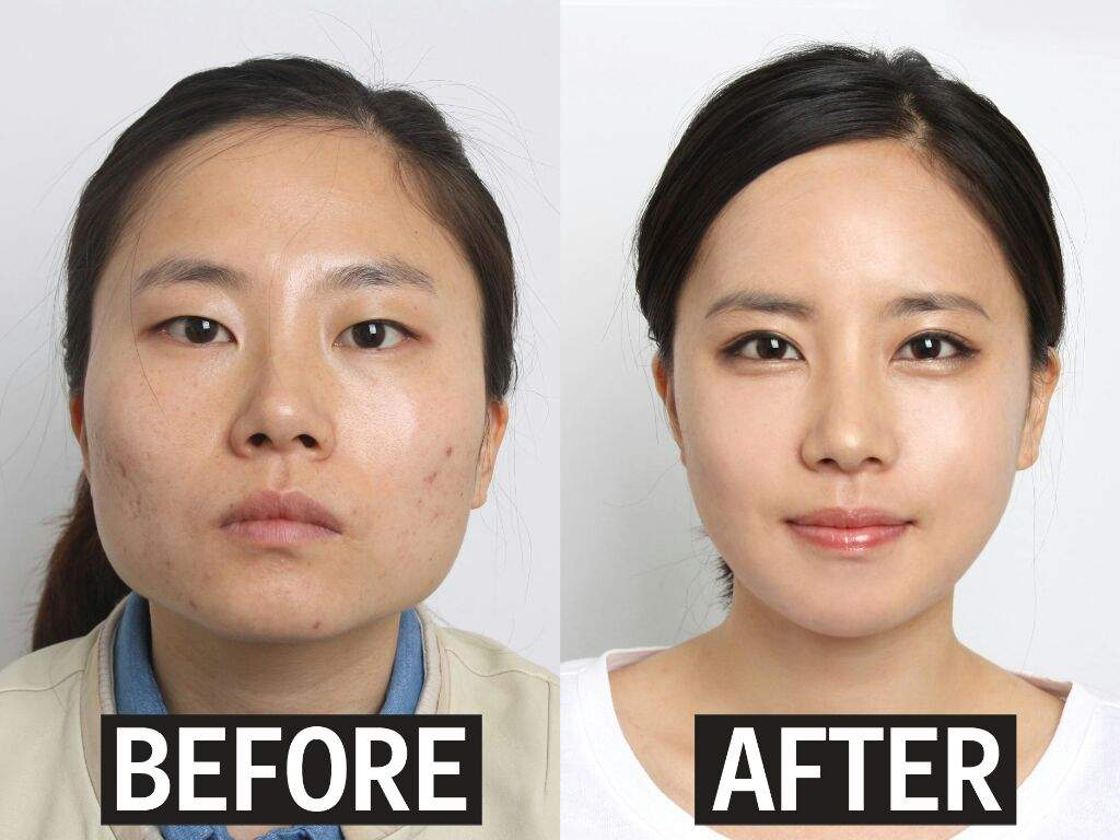 The expert, Facial symmetry plastic surgery can defined?