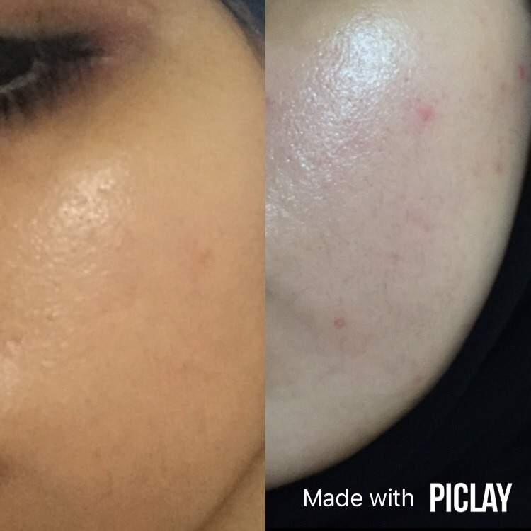 Skin Results | Subliminal Users Amino