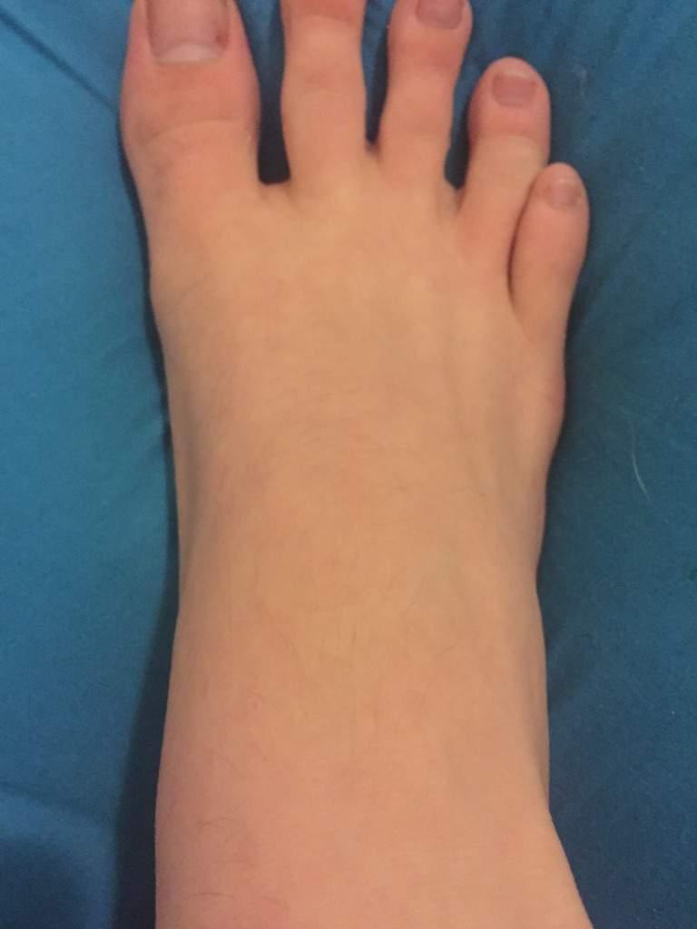 toe Fetish fungus