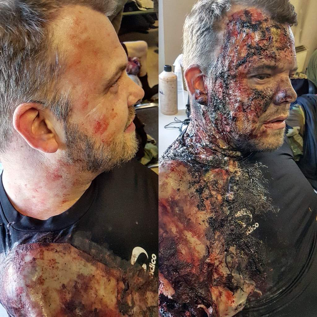 Little Comparison To Before And After Burn And Amputation