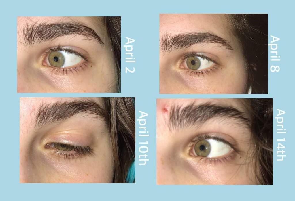 Eye results | Subliminal Users Amino
