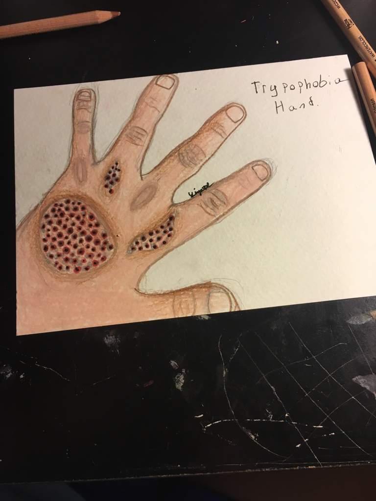 Trypophobia Hand Art Amino
