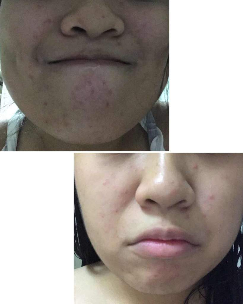 How I Cleared My Acne Products Used Current Skincare Routine Dr Pure Serum Pimple Cream Care Before