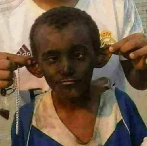 واحد أحول راح يجيب أبوه من المطار باس الشنطة وشال أبوه محششين عالأخر Amino