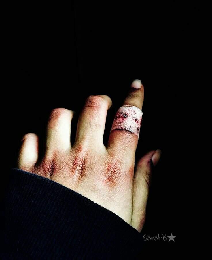 тщательно картинки разбитых женских рук честно, смотрел одной