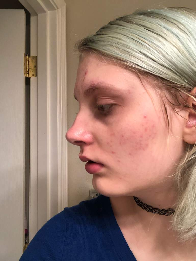 1 month ulzzang face results!   Subliminal Community ™ Amino