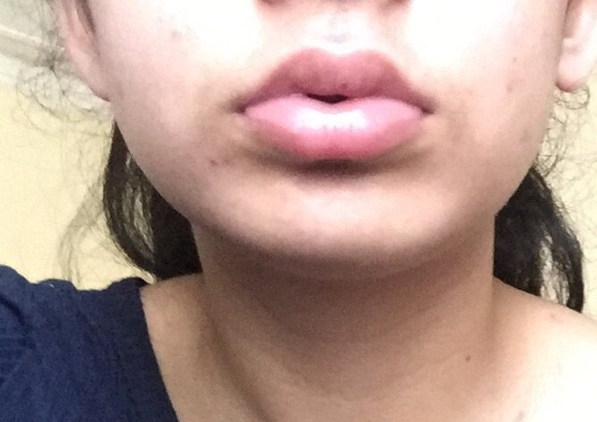 My crazy lip results 💕   Subliminal Users Amino
